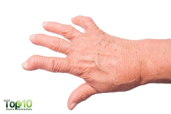 how to prevent and treat osteoarthritis in hands