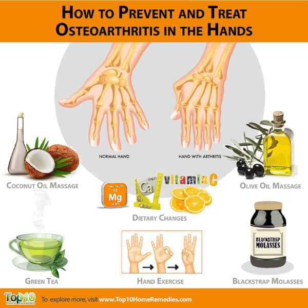 how to prevent and treat hand osteoarthritis in hands