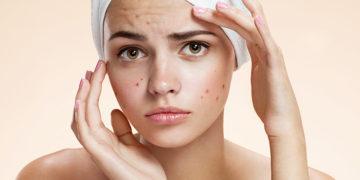 How to treat Hormonal Acne