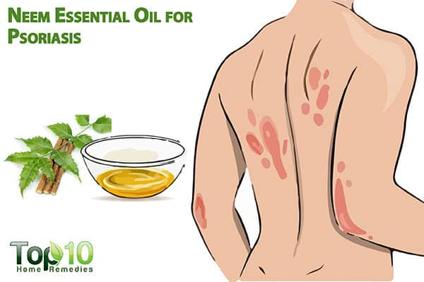 neem oil for psoriasis