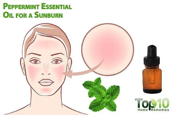 peppermint oil for sunburn