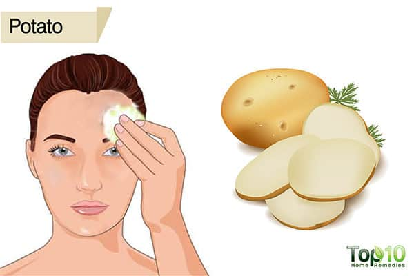 potato to treat suntan on face