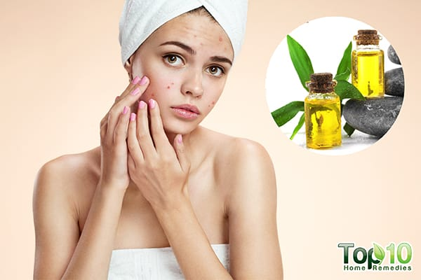 use essential oils for different skin problems