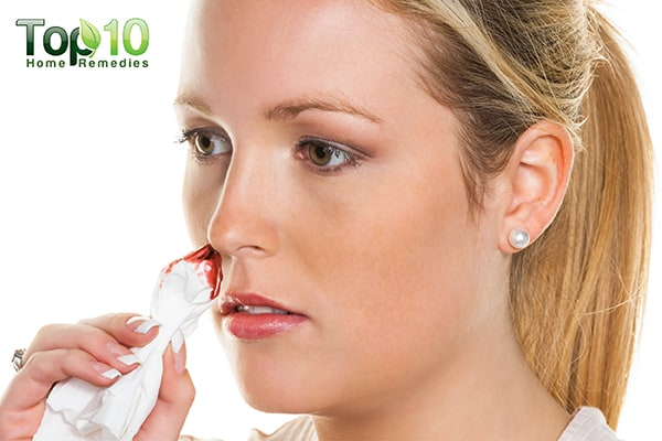 how to deal with nose bleeds during pregnancy