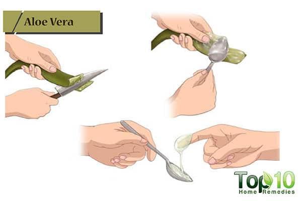 aloe vera for receding gums