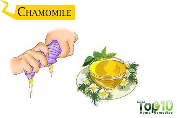 chamomile to soothe insect bites
