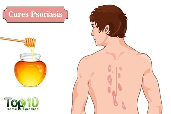 honey for psoriasis
