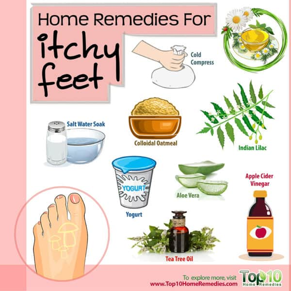 home remedies for itchy feet