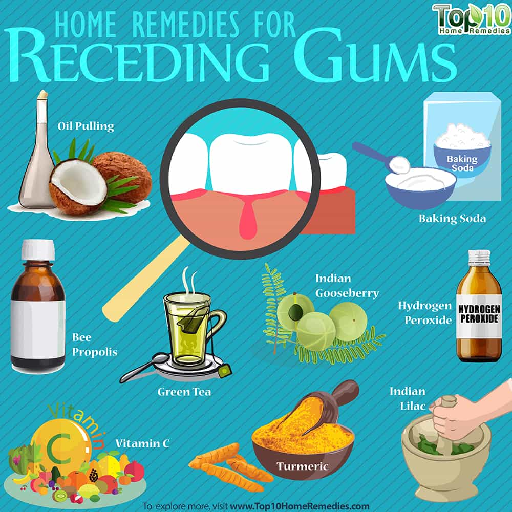 Receding Gums Home Remedies Prevention And Causes Top 10 Home