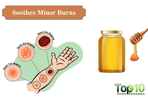 use honey for minor burns