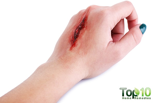 wound care tips for diabetics