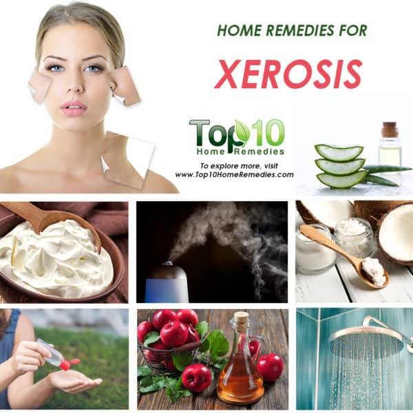home remedies for xerosis