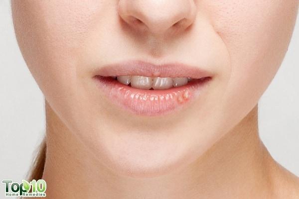 Pimple on lip