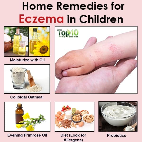 Natural Remedies For Eczema In Children Top 10 Home Remedies