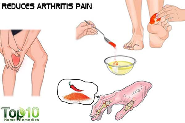 Capsaicin relieves arthritis pain