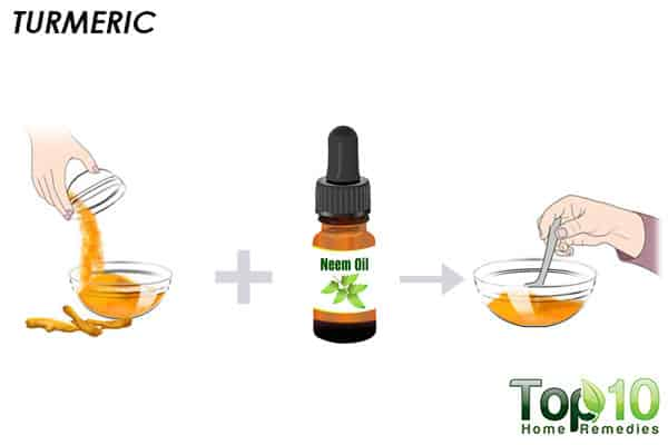 turmeric to remove lipoma