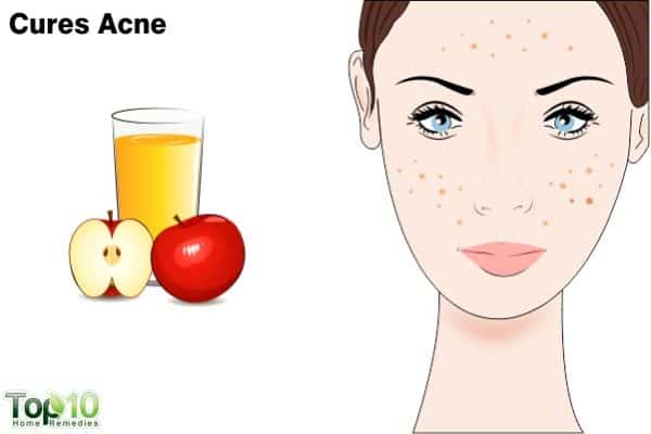 apple cider vinegar treats acne