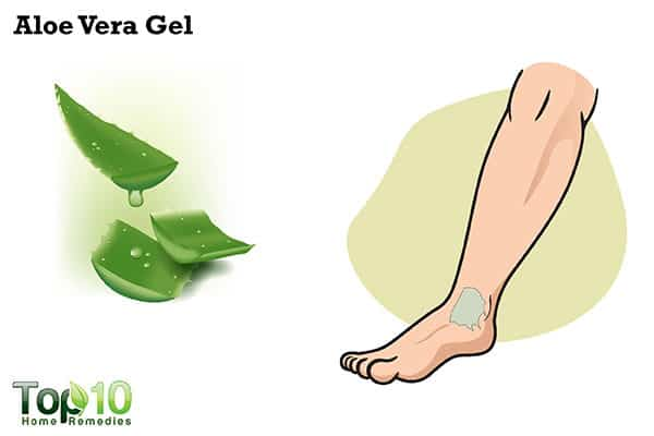 aloe ver gel to reduce jellyfish sting