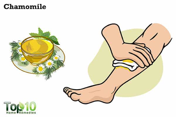 chamomile to heal jellyfish sting