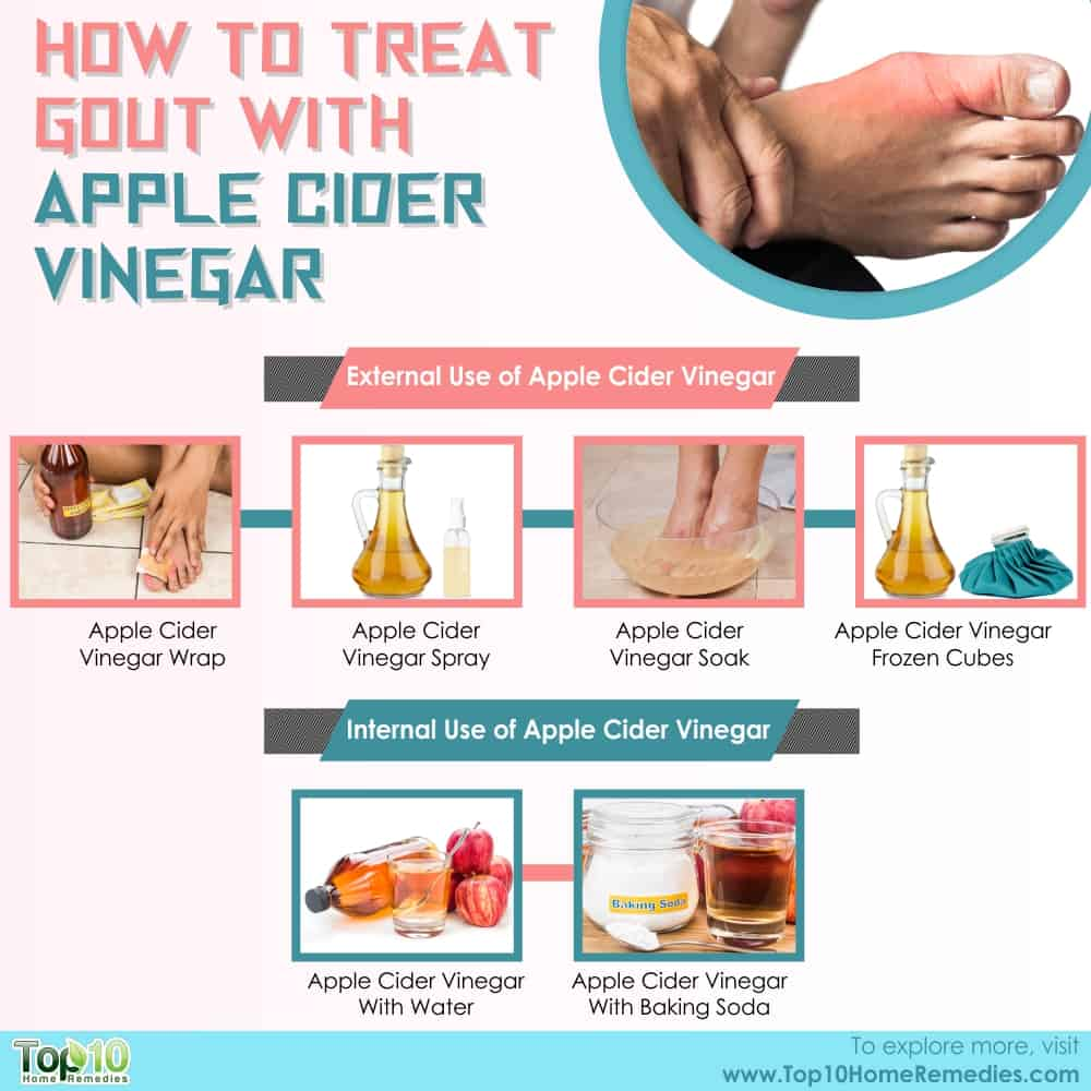 how to treat gout with apple cider vinegar | top 10 home remedies