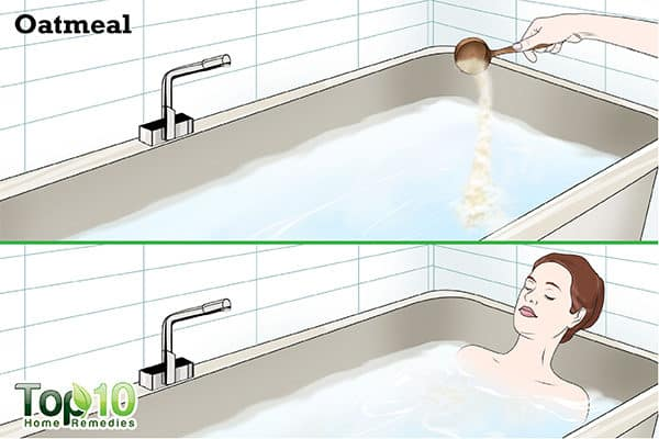 oatmeal bath to soothe jellyfish sting