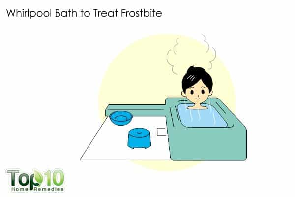 whirlpool bath to treat frostbite