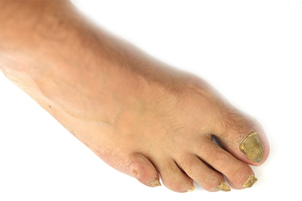 10 Remedies to Fight Toenail Fungus at Home