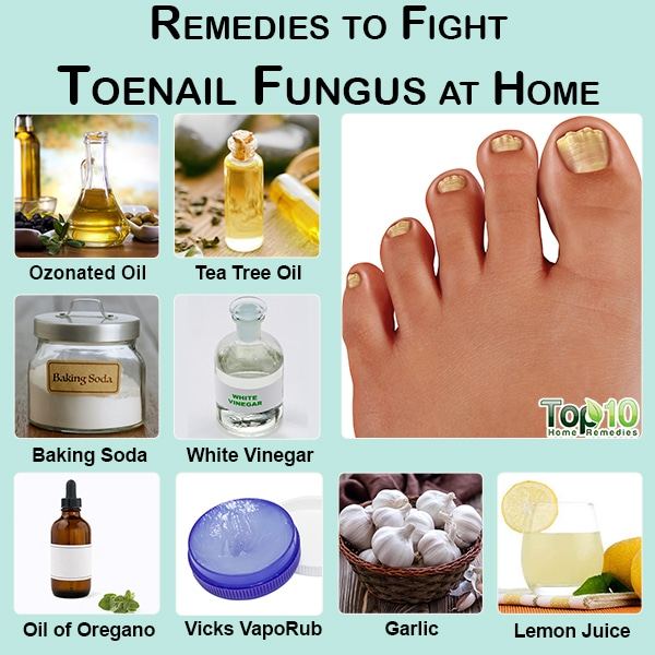 10 Remedies to Fight Toenail Fungus at Home | Top 10 Home Remedies