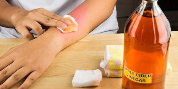 apple cider vinegar to heal skin rash