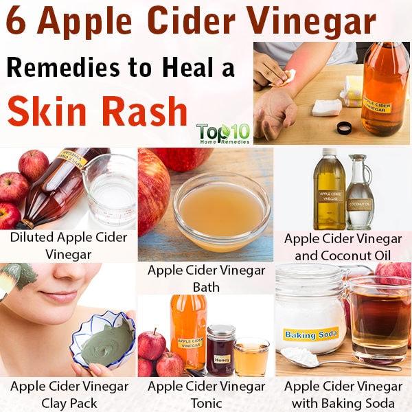 apple cider vinegar for skin rash
