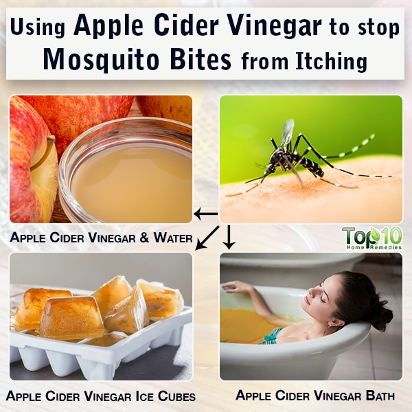 apple cider vinegar stops mosquito bites from itching